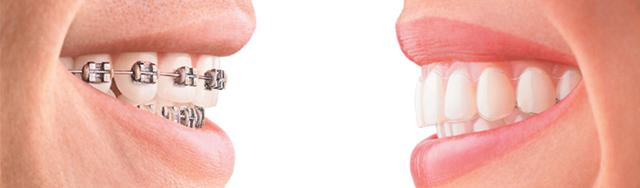 Kieferorthopädie für Erwachsene- Zahnspangen