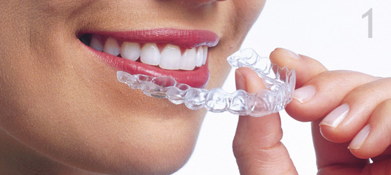 Invisalign - unsichtbare Zahnkorrektur
