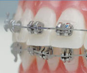 Metall-Brackets